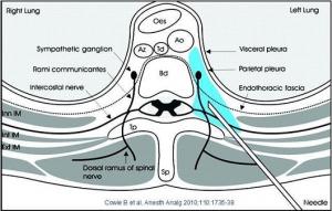 Bild 1 Paravertebralblockad