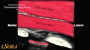 Bild 4 Paravertebralblockad