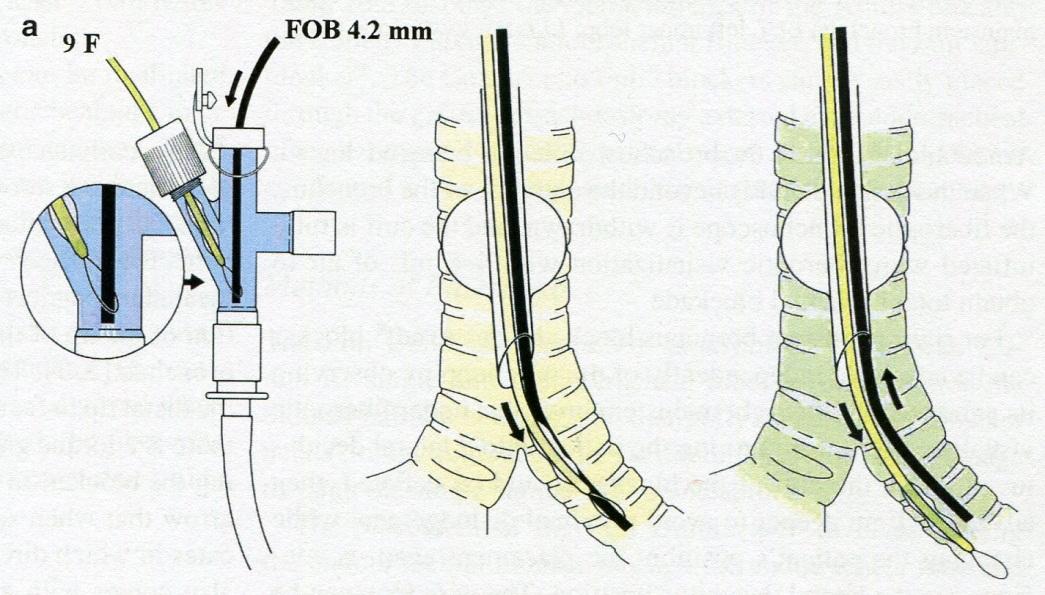 anatomi hjärtat kranskärl